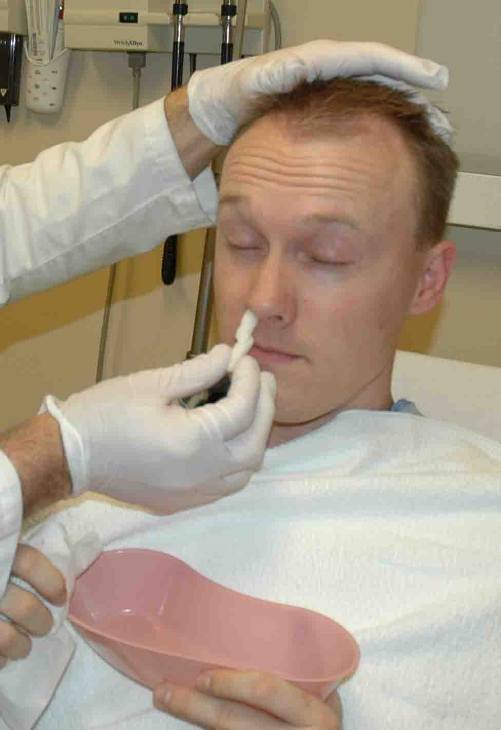 Inserting an oxymetzoline soaked cotton ball into the bleeding nostril