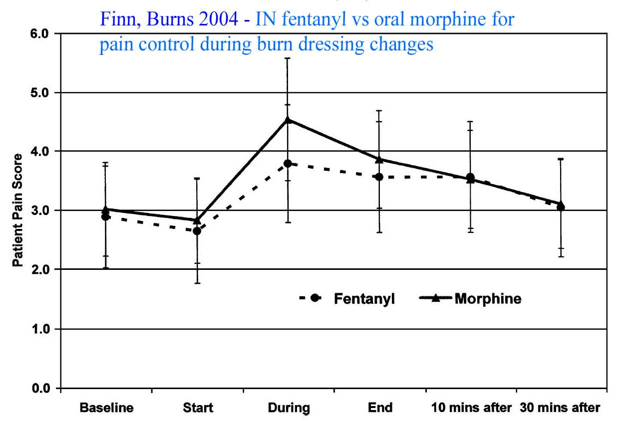 Finn literature showing pain scores in burn patients who get Intranasal fentanyl